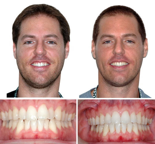Seems before and after adult braces are