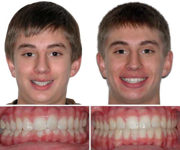 An Unbiased View of Teeth After Braces