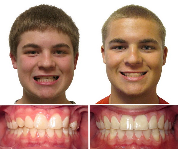 Seems me, before and after adult braces