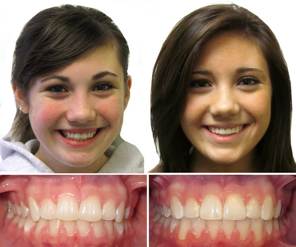 Braces Before And After Children Family Dentistry Braces